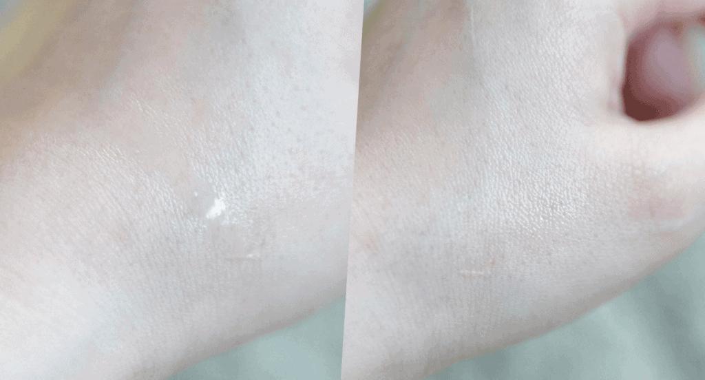 เวลาลงผิว d program Acne care lotion